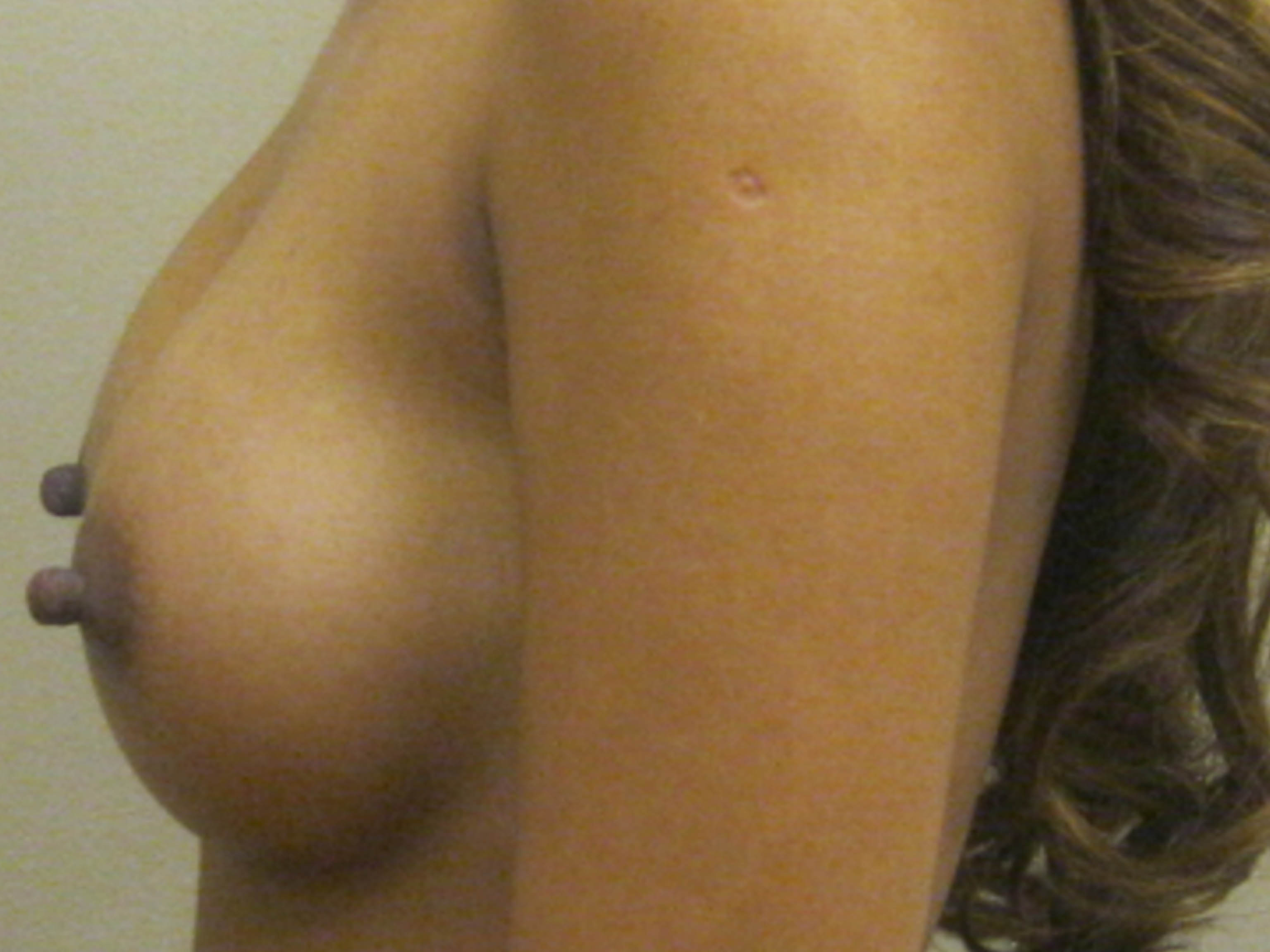 Breastfeeding with flat and inverted nipples